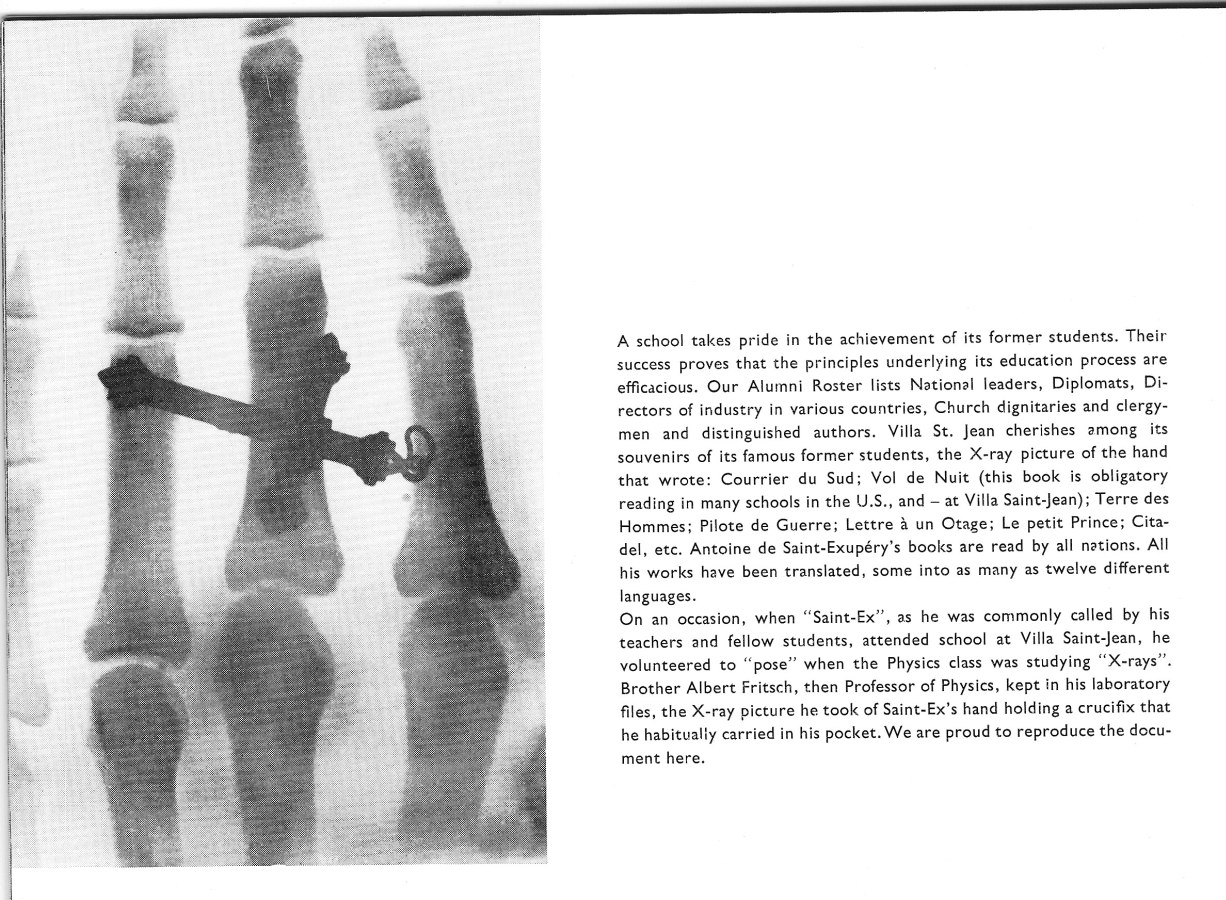 PHOTOS of Villa Saint Jean International School X Ray of Antoine de Saint-Exupery's Hand
